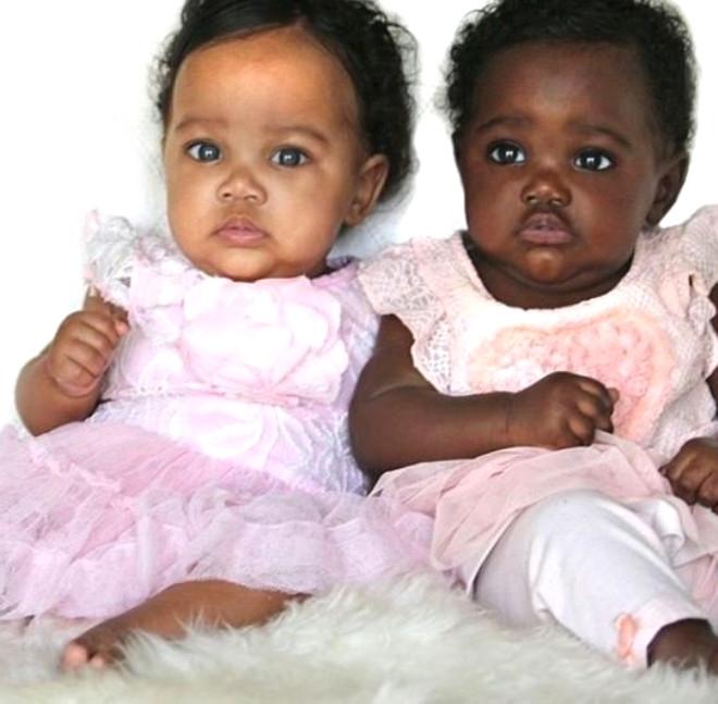 2 farklı cilt ve göz rengine sahip ikizleri gören şoke oluyor 4