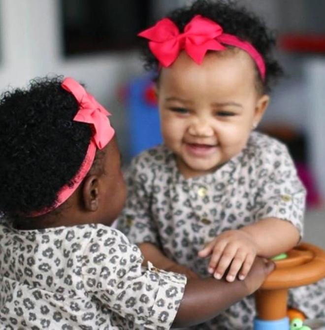 2 farklı cilt ve göz rengine sahip ikizleri gören şoke oluyor 8