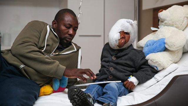 Yüzünün yarısını kaplayan tümörden Türkiye'de kurtulacak