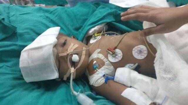 Hindistan'da yapışık ikizler ameliyatla ayrıldı
