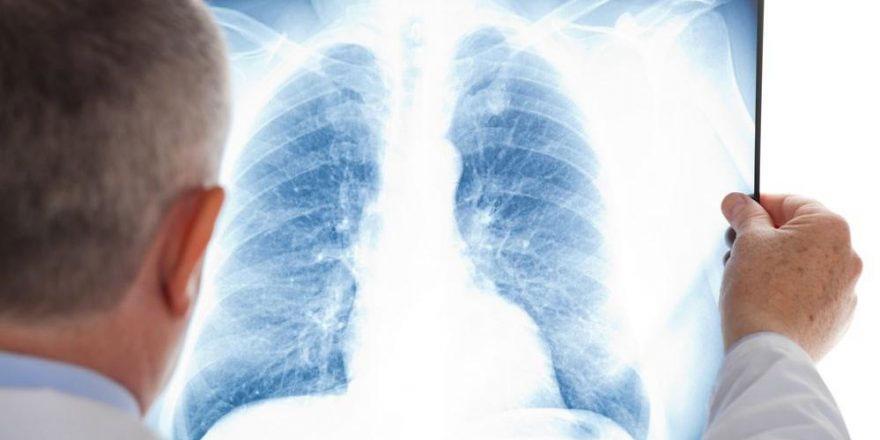 'Elektronik sigara ile ilgili o iddia bilim dışıdır'