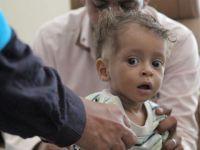 UNICEF Yemen'e 6 milyon doz aşı yardımında bulundu